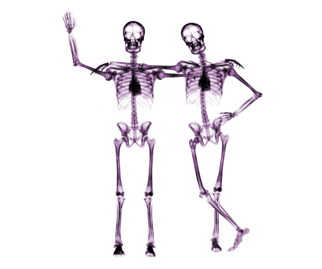Fascia as a Soft Skeleton